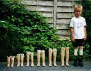پسر با پای مصنوعی